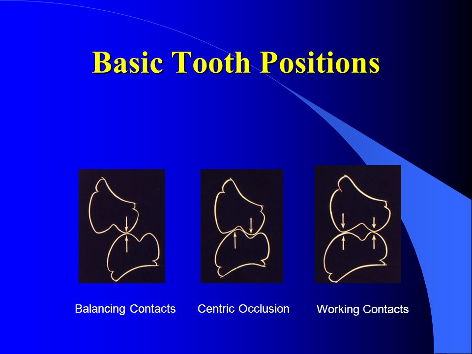 Basic Tooth Positions Balancing ContactsCentric Occlusion Working Contacts