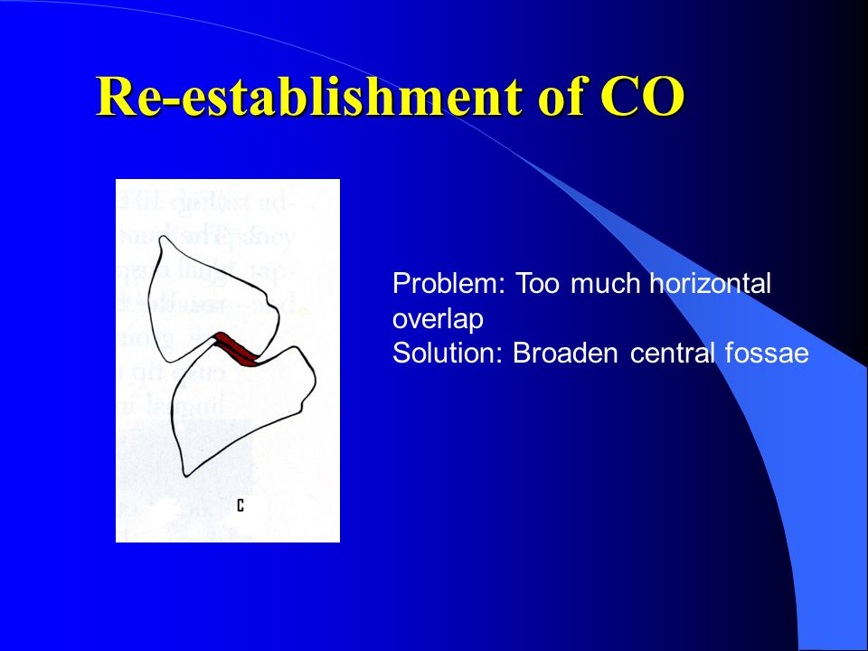 Re-establishment of CO Problem: Too much horizontal overlap Solution: Broaden central fossae