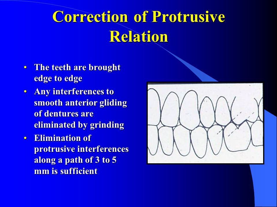 Correction of Protrusive Relation The teeth are brought edge to edgeThe teeth are brought edge to edge Any interferences to smooth anterior gliding of dentures are eliminated by grindingAny interferences to smooth anterior gliding of dentures are eliminated by grinding Elimination of protrusive interferences along a path of 3 to 5 mm is sufficientElimination of protrusive interferences along a path of 3 to 5 mm is sufficient