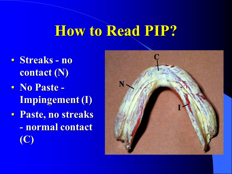 How to Read PIP? Streaks - no contact (N)Streaks - no contact (N) No Paste - Impingement (I)No Paste - Impingement (I) Paste, no streaks - normal cont