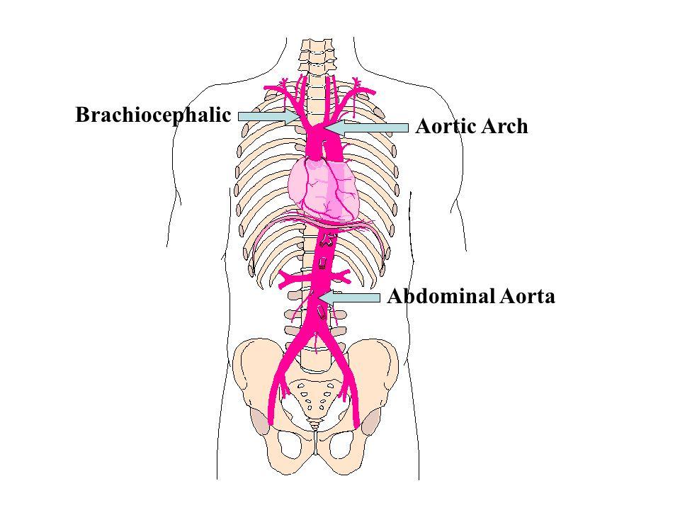 Aortic Arch Abdominal Aorta Brachiocephalic