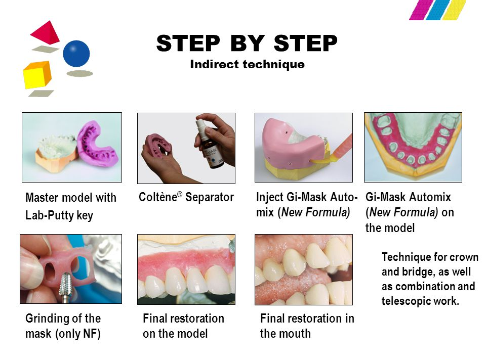 STEP BY STEP Indirect technique Master model with Lab-Putty key Coltène ® SeparatorGi-Mask Automix ( New Formula) on the model Grinding of the mask (o