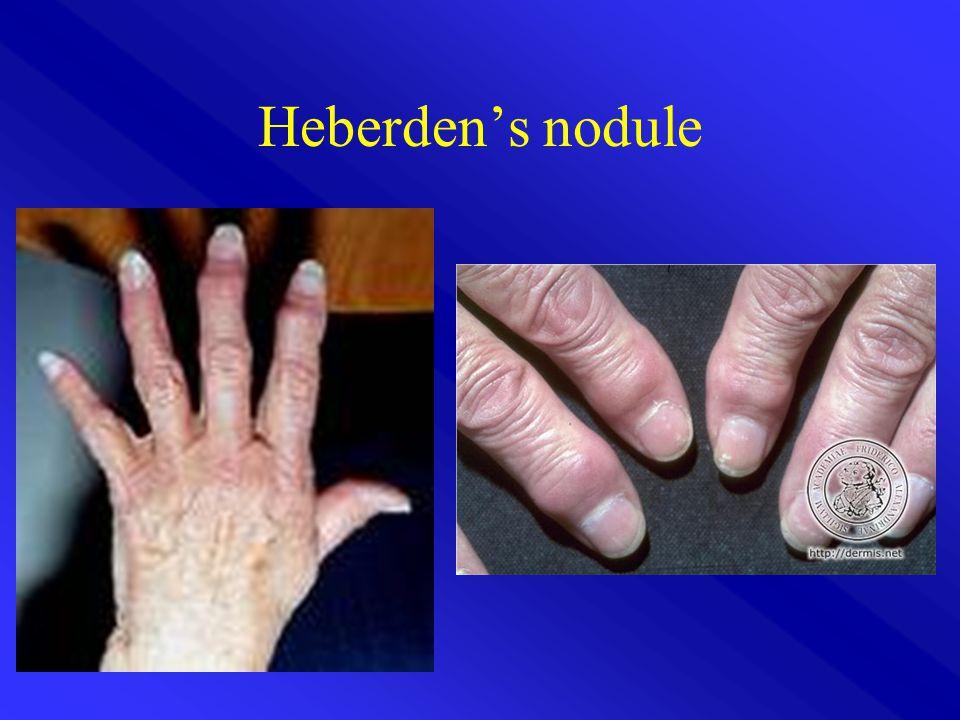 Heberden's nodule