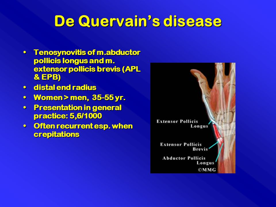 De Quervain's disease Tenosynovitis of m.abductor pollicis longus and m. extensor pollicis brevis (APL & EPB)Tenosynovitis of m.abductor pollicis long