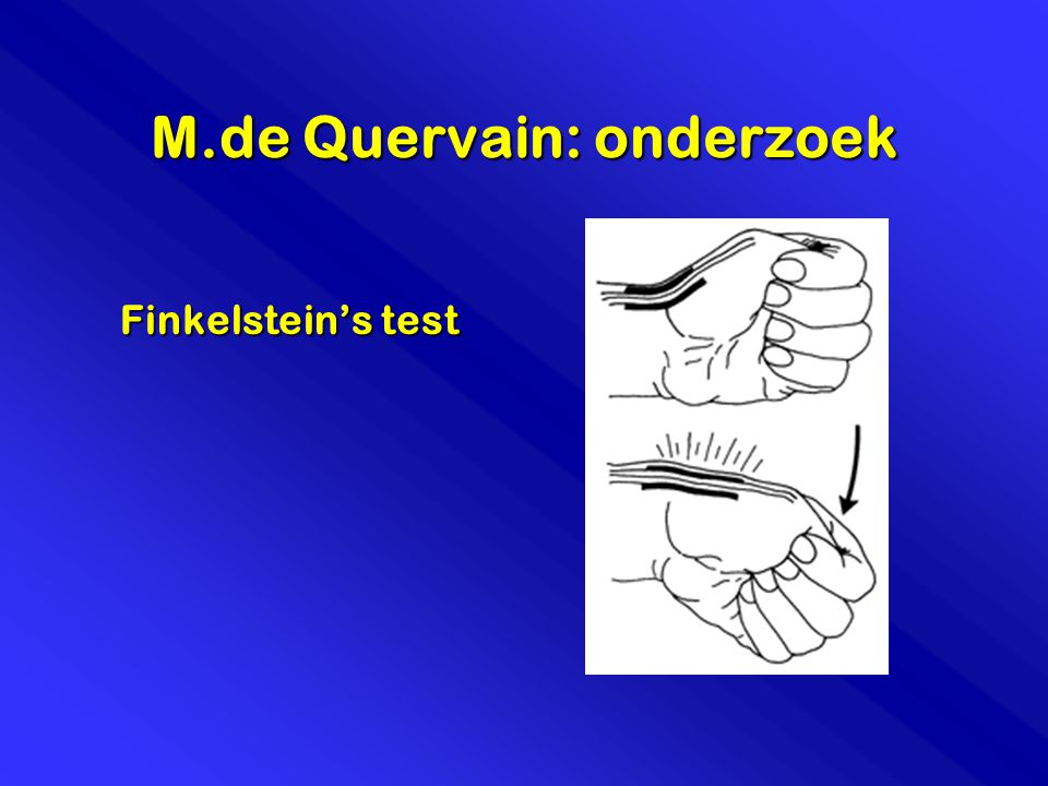 M.de Quervain: onderzoek Finkelstein's test