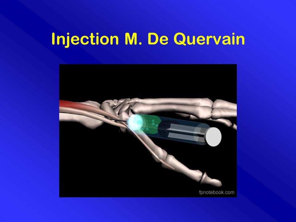 Injection M. De Quervain