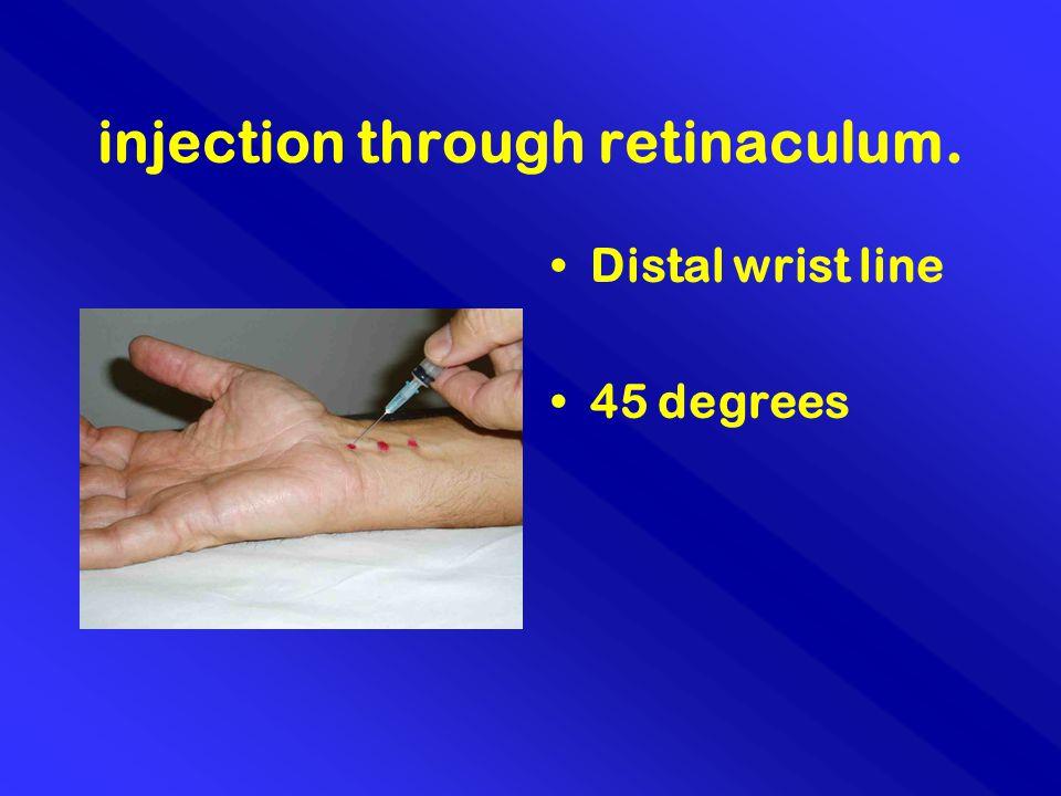 injection through retinaculum. Distal wrist line 45 degrees