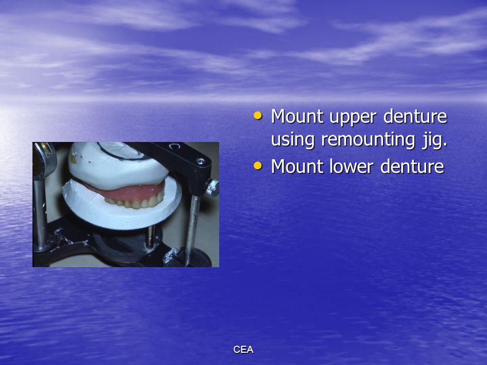CEA Mount upper denture using remounting jig. Mount upper denture using remounting jig. Mount lower denture Mount lower denture