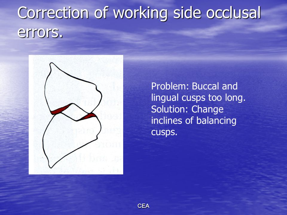 CEA Correction of working side occlusal errors. Problem: Buccal and lingual cusps too long. Solution: Change inclines of balancing cusps.