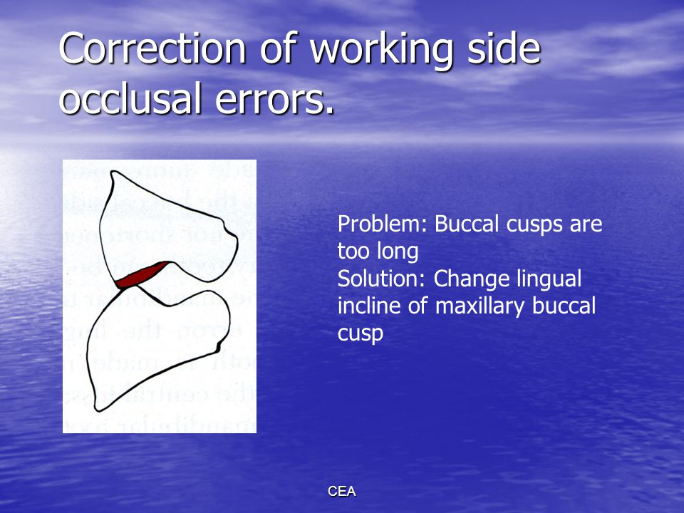 CEA Correction of working side occlusal errors. Problem: Buccal cusps are too long Solution: Change lingual incline of maxillary buccal cusp