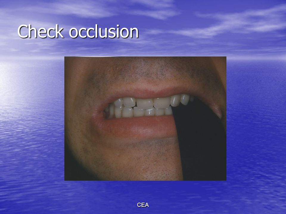 CEA Re-establishment of CO Problem: Teeth too long Solution: Deepen the fossae