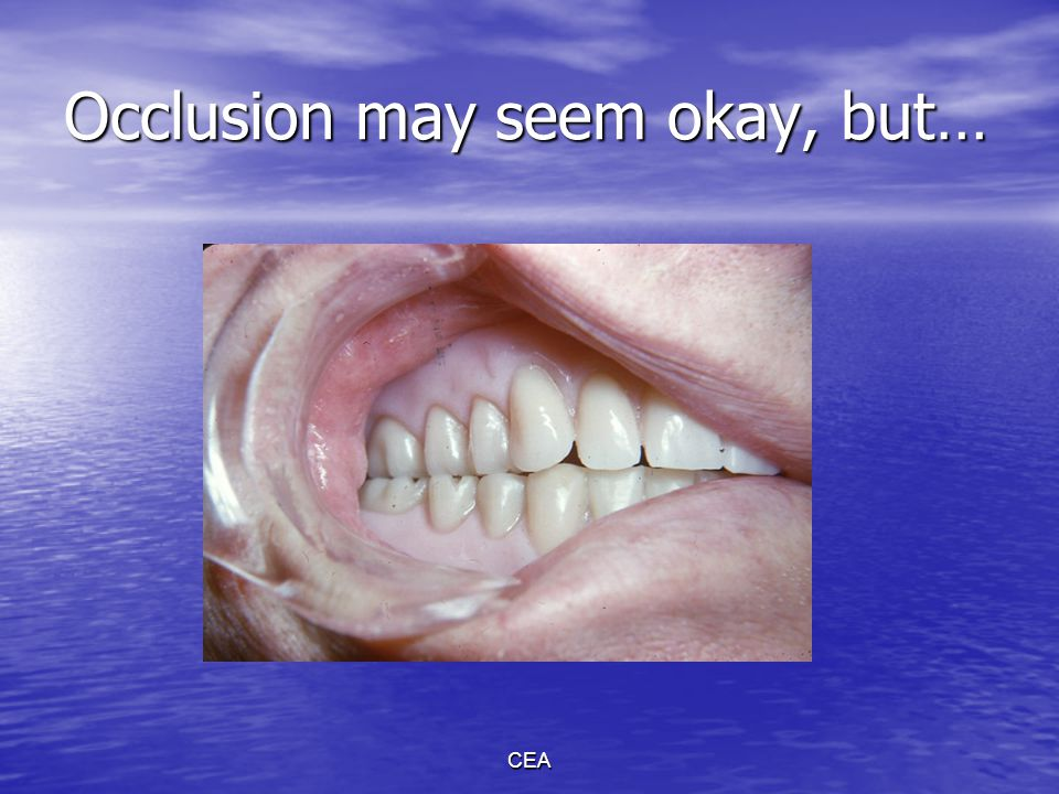 CEA Eliminating occlusal errors in nonanatomic teeth Interocclusal CR record is made.