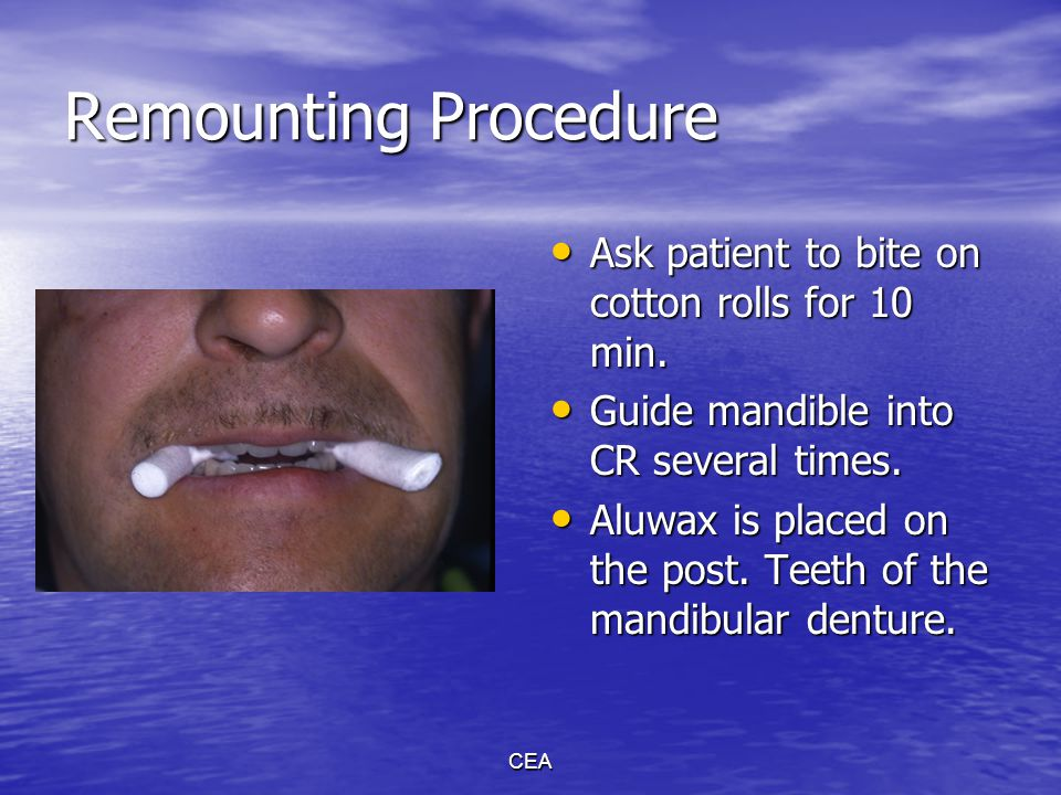 CEA Correction of working side occlusal errors.