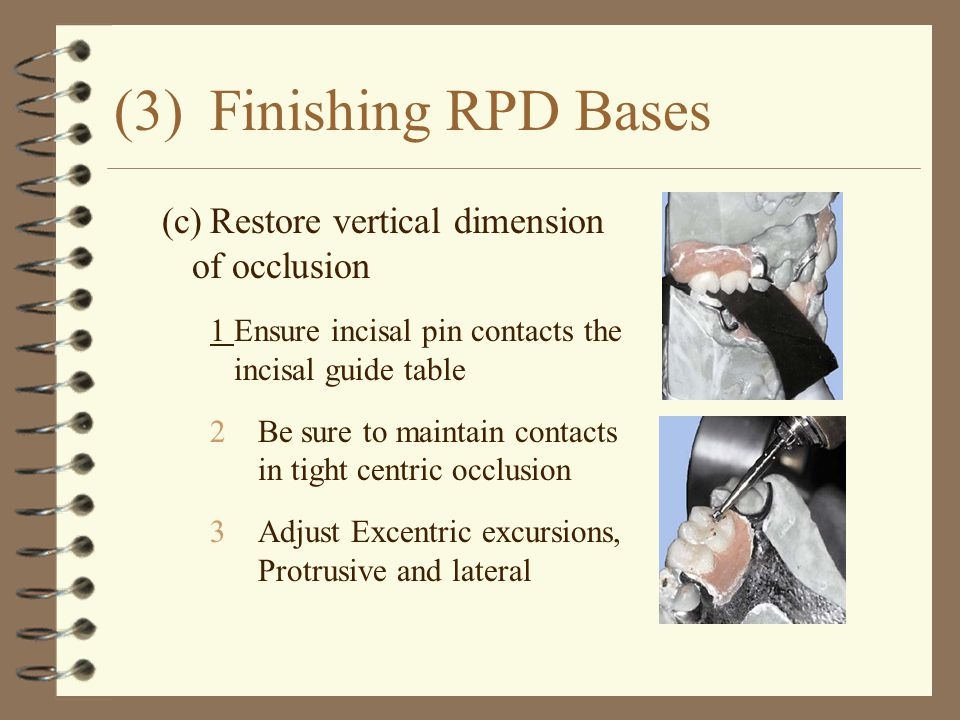 (3)Finishing RPD Bases (c)Restore vertical dimension of occlusion 1Ensure incisal pin contacts the incisal guide table 2Be sure to maintain contacts i