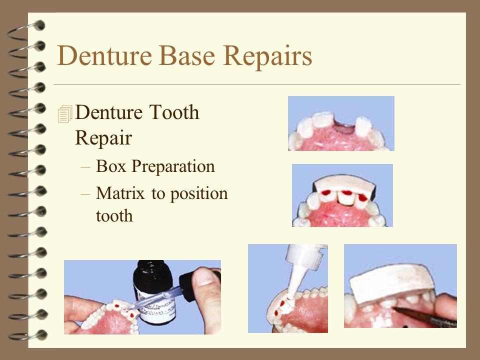 Denture Base Repairs 4 Denture Tooth Repair –Box Preparation –Matrix to position tooth