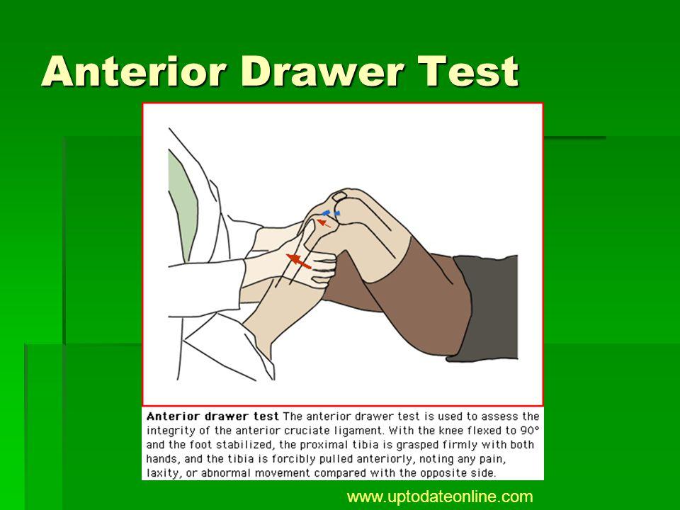Anterior Drawer Test www.uptodateonline.com