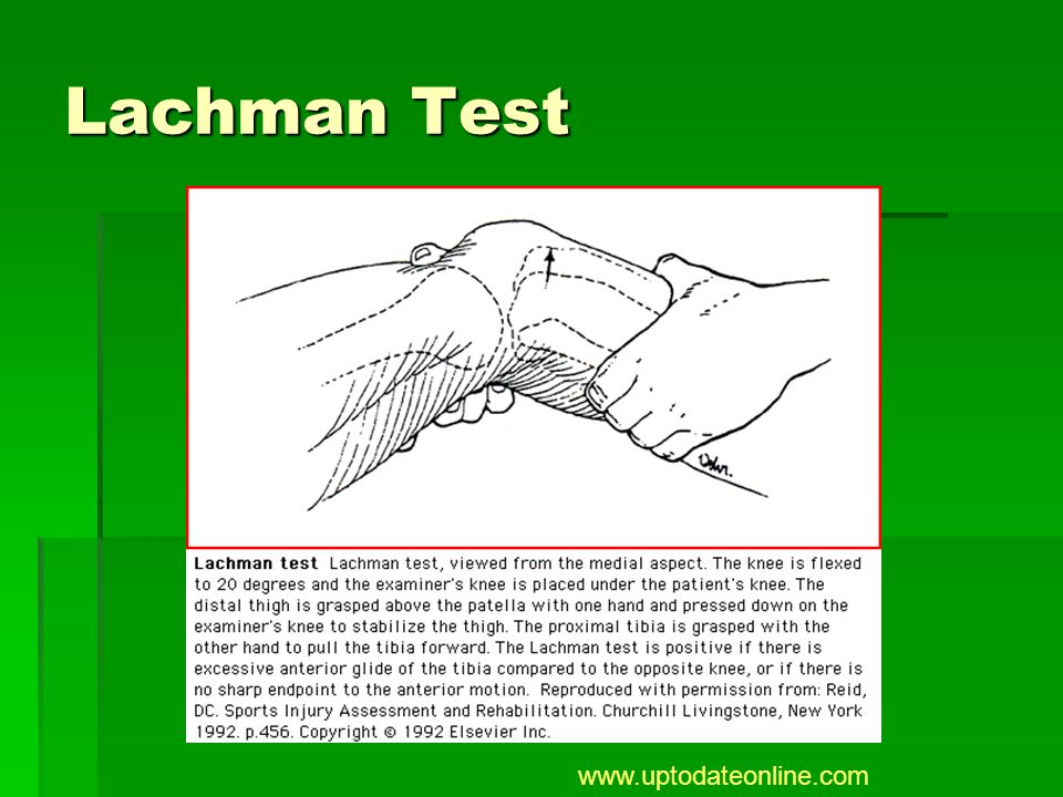 Lachman Test www.uptodateonline.com