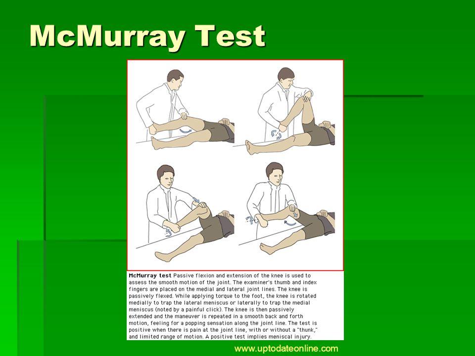 McMurray Test www.uptodateonline.com