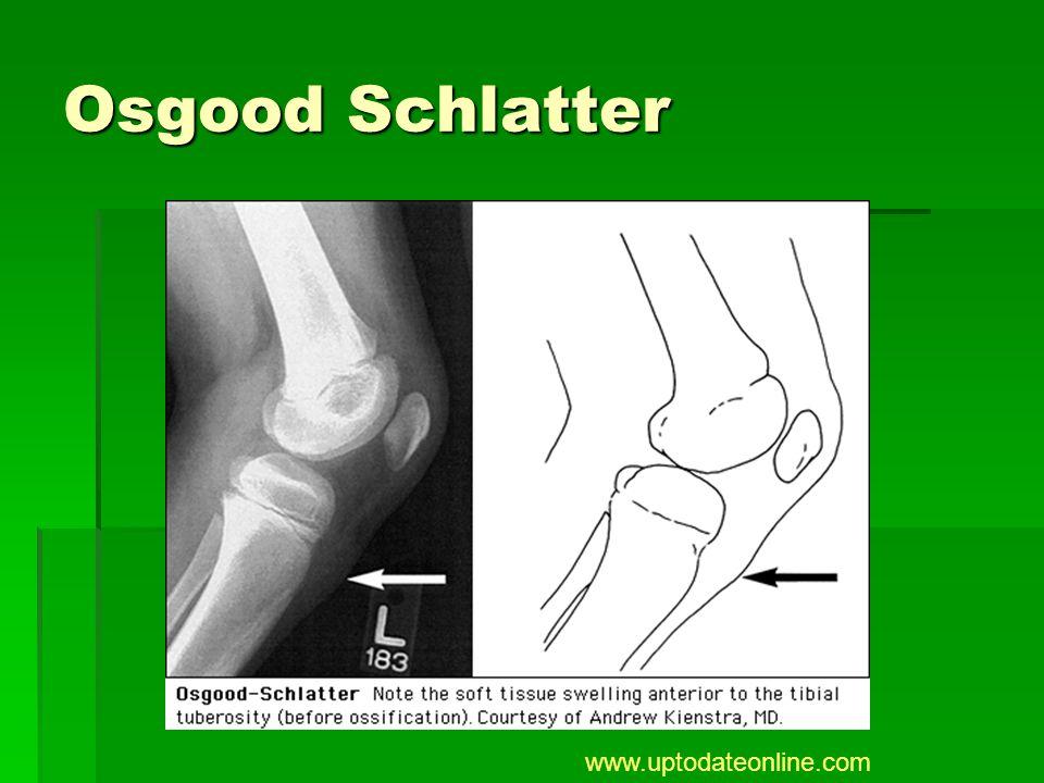Osgood Schlatter www.uptodateonline.com