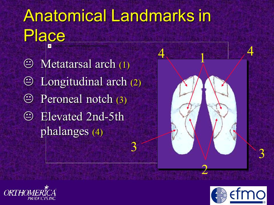 Anatomical Landmarks in Place KMetatarsal arch (1) KLongitudinal arch (2) KPeroneal notch (3) KElevated 2nd-5th phalanges (4) 1 2 4 4 3 3