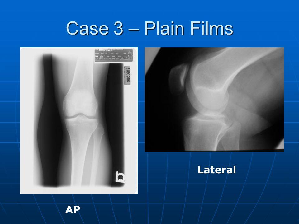 Case 3 – Plain Films AP Lateral