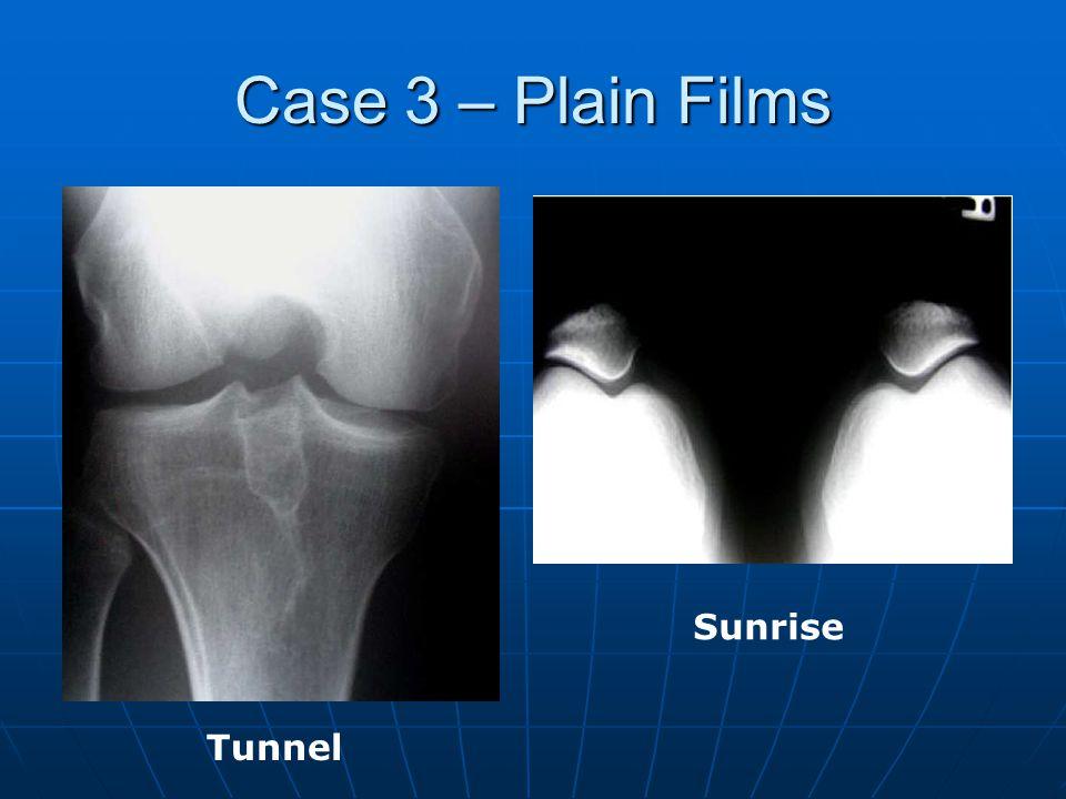Case 3 – Plain Films Tunnel Sunrise