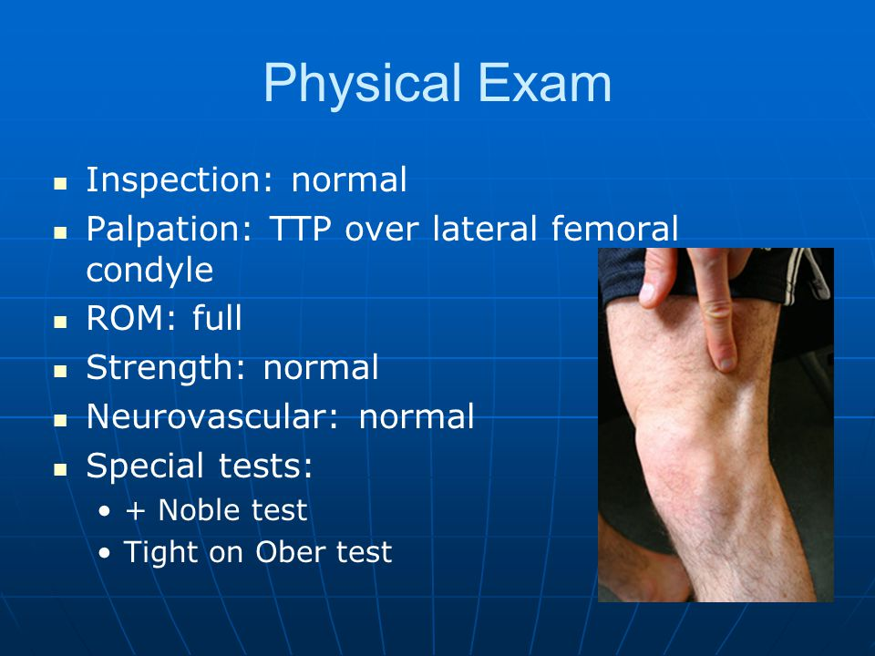 Physical Exam Inspection: normal Palpation: TTP over lateral femoral condyle ROM: full Strength: normal Neurovascular: normal Special tests: + Noble test Tight on Ober test