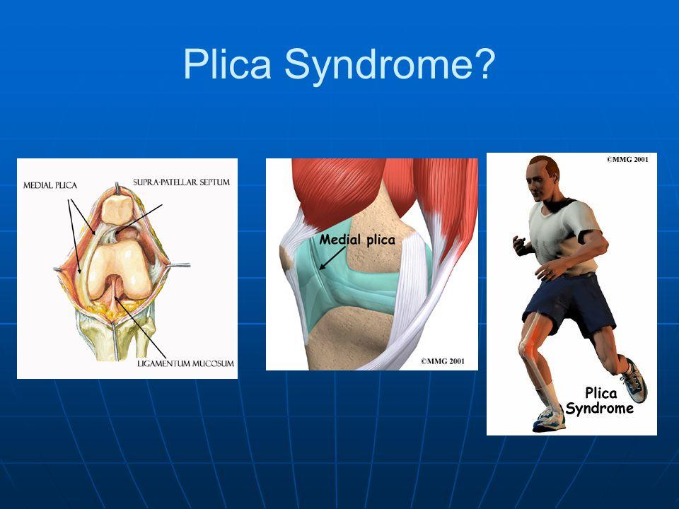 Plica Syndrome?