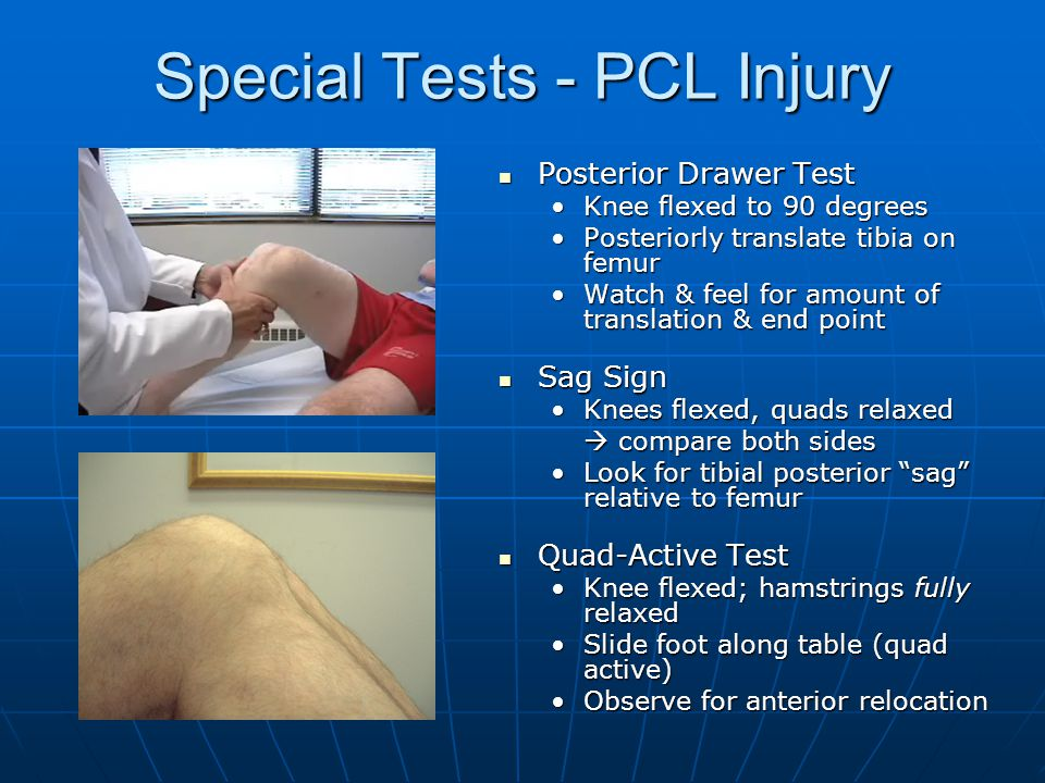 Special Tests - PCL Injury Posterior Drawer Test Posterior Drawer Test Knee flexed to 90 degreesKnee flexed to 90 degrees Posteriorly translate tibia on femurPosteriorly translate tibia on femur Watch & feel for amount of translation & end pointWatch & feel for amount of translation & end point Sag Sign Sag Sign Knees flexed, quads relaxedKnees flexed, quads relaxed  compare both sides Look for tibial posterior sag relative to femurLook for tibial posterior sag relative to femur Quad-Active Test Quad-Active Test Knee flexed; hamstrings fully relaxedKnee flexed; hamstrings fully relaxed Slide foot along table (quad active)Slide foot along table (quad active) Observe for anterior relocationObserve for anterior relocation