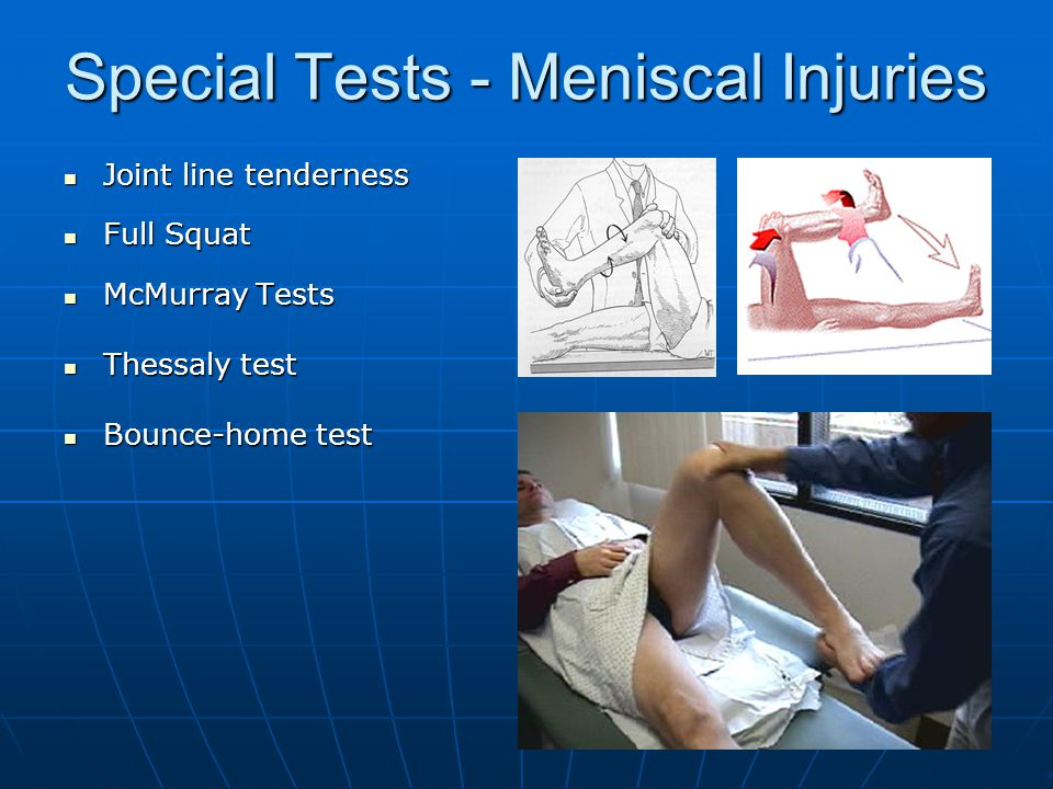 Special Tests - Meniscal Injuries Joint line tenderness Joint line tenderness Full Squat Full Squat McMurray Tests McMurray Tests Thessaly test Thessaly test Bounce-home test Bounce-home test