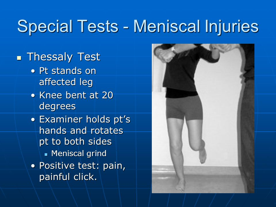 Special Tests - Meniscal Injuries Thessaly Test Thessaly Test Pt stands on affected legPt stands on affected leg Knee bent at 20 degreesKnee bent at 20 degrees Examiner holds pt's hands and rotates pt to both sidesExaminer holds pt's hands and rotates pt to both sides Meniscal grind Meniscal grind Positive test: pain, painful click.Positive test: pain, painful click.