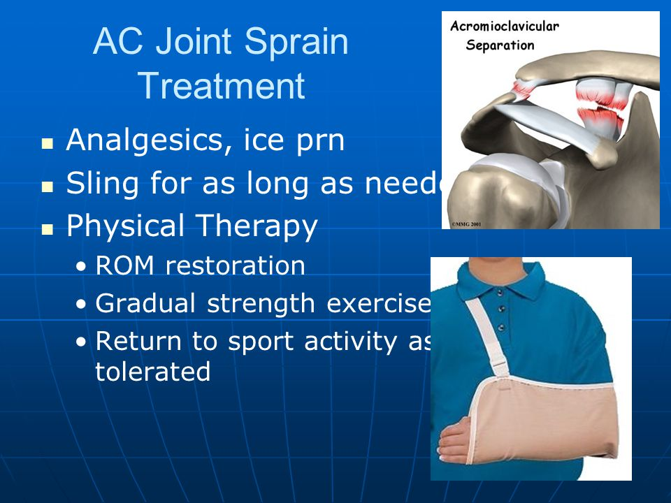 AC Joint Sprain Treatment Analgesics, ice prn Sling for as long as needed Physical Therapy ROM restoration Gradual strength exercise Return to sport activity as tolerated