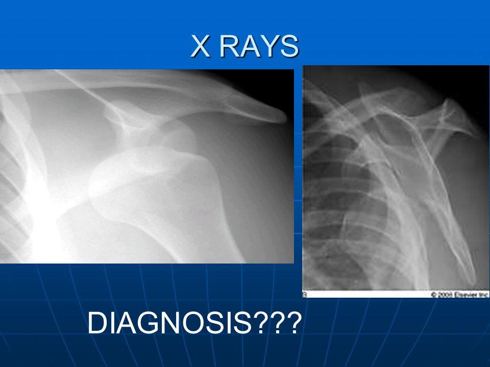 X RAYS DIAGNOSIS???