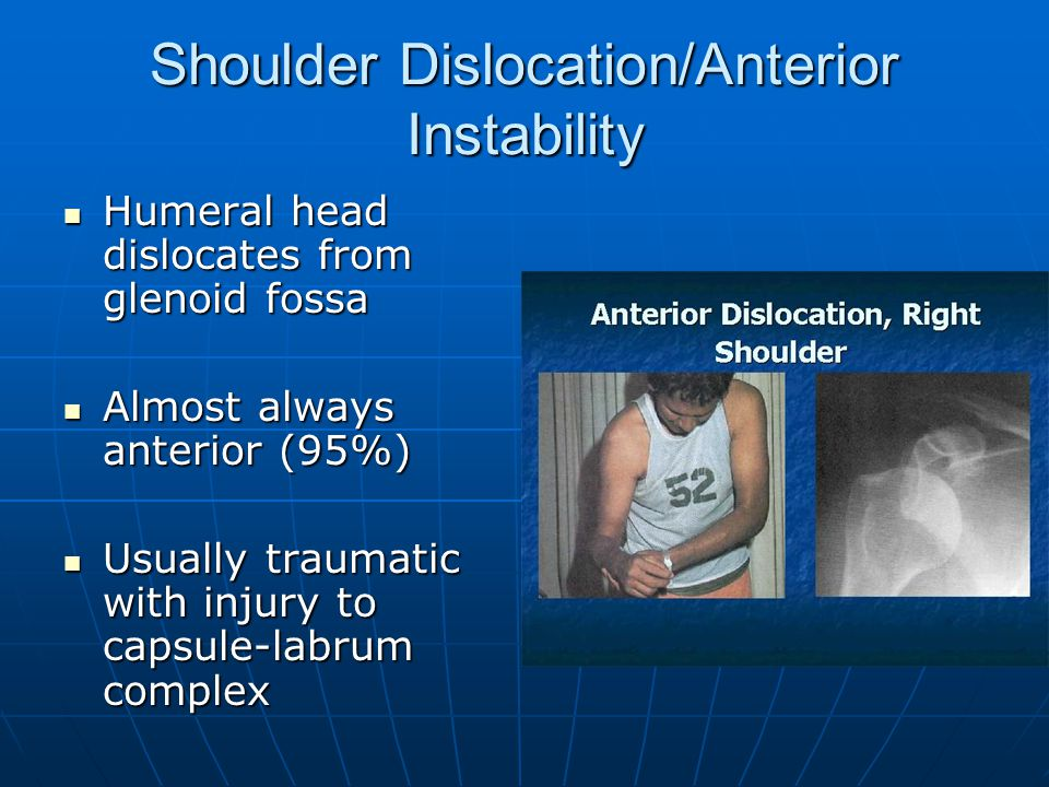 Shoulder Dislocation/Anterior Instability Humeral head dislocates from glenoid fossa Humeral head dislocates from glenoid fossa Almost always anterior (95%) Almost always anterior (95%) Usually traumatic with injury to capsule-labrum complex Usually traumatic with injury to capsule-labrum complex