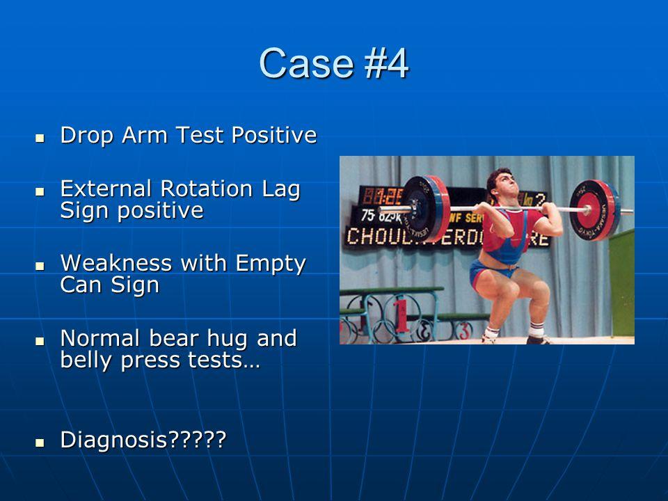 Case #4 Drop Arm Test Positive Drop Arm Test Positive External Rotation Lag Sign positive External Rotation Lag Sign positive Weakness with Empty Can