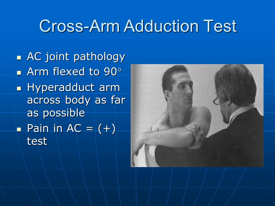 Cross-Arm Adduction Test AC joint pathology AC joint pathology Arm flexed to 90° Arm flexed to 90° Hyperadduct arm across body as far as possible Hyperadduct arm across body as far as possible Pain in AC = (+) test Pain in AC = (+) test