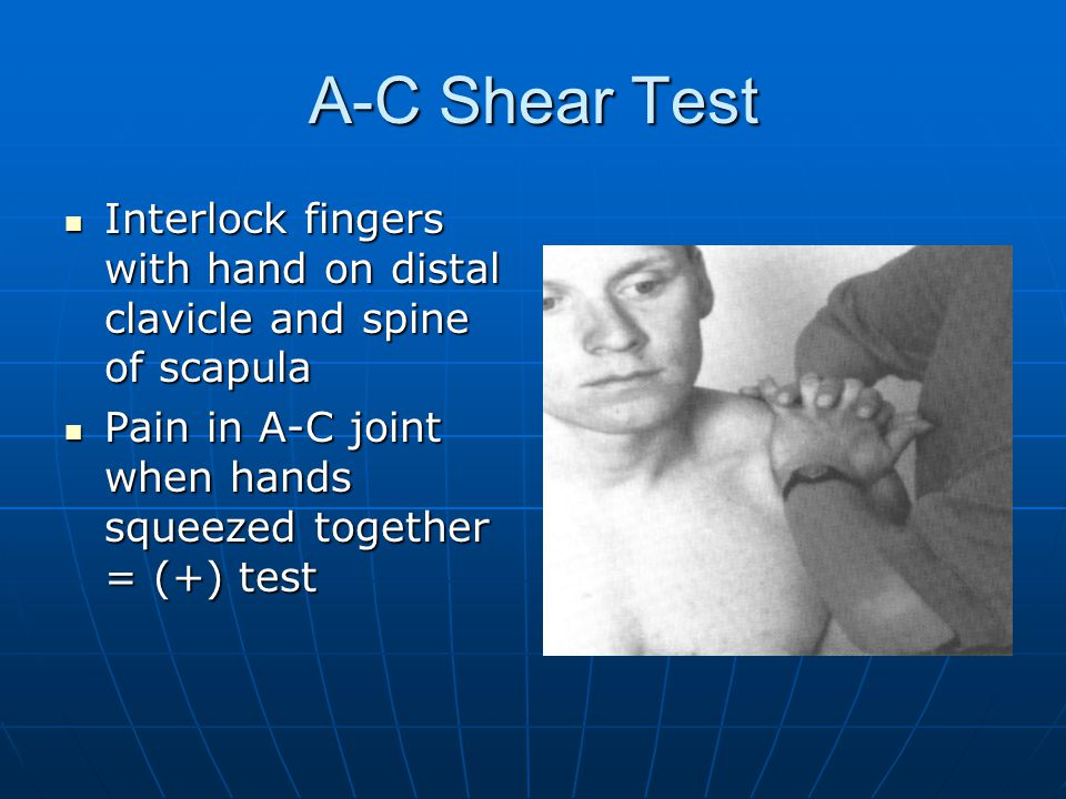 A-C Shear Test Interlock fingers with hand on distal clavicle and spine of scapula Interlock fingers with hand on distal clavicle and spine of scapula Pain in A-C joint when hands squeezed together = (+) test Pain in A-C joint when hands squeezed together = (+) test