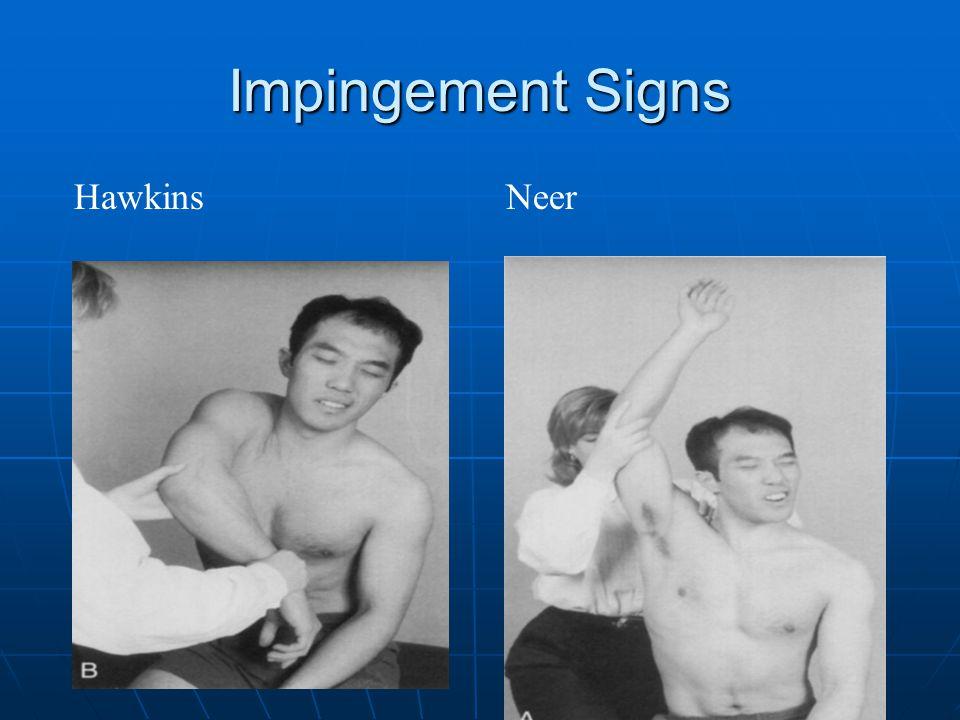 Impingement Signs HawkinsNeer