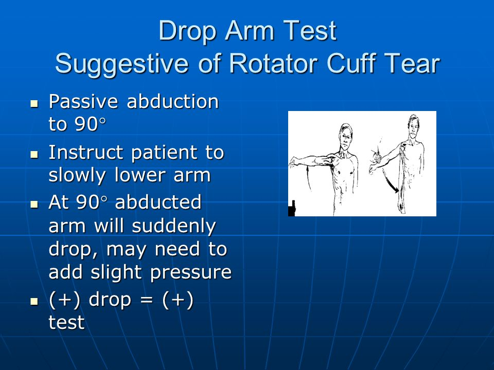 Drop Arm Test Suggestive of Rotator Cuff Tear Passive abduction to 90° Passive abduction to 90° Instruct patient to slowly lower arm Instruct patient to slowly lower arm At 90° abducted arm will suddenly drop, may need to add slight pressure At 90° abducted arm will suddenly drop, may need to add slight pressure (+) drop = (+) test (+) drop = (+) test