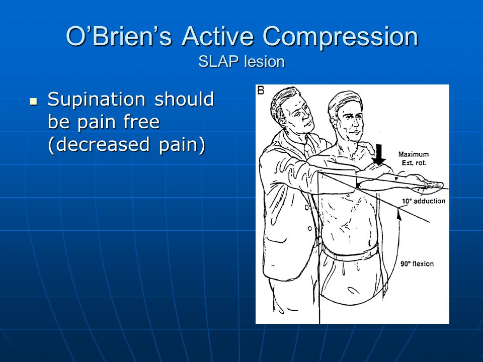 O'Brien's Active Compression SLAP lesion Supination should be pain free (decreased pain) Supination should be pain free (decreased pain)
