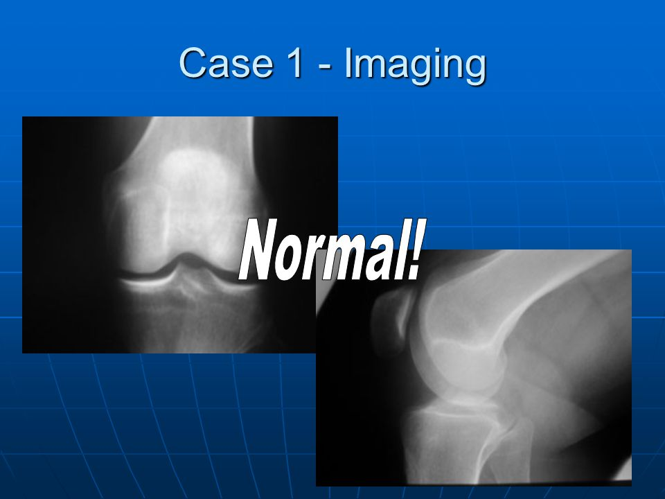 Case 1 - Imaging