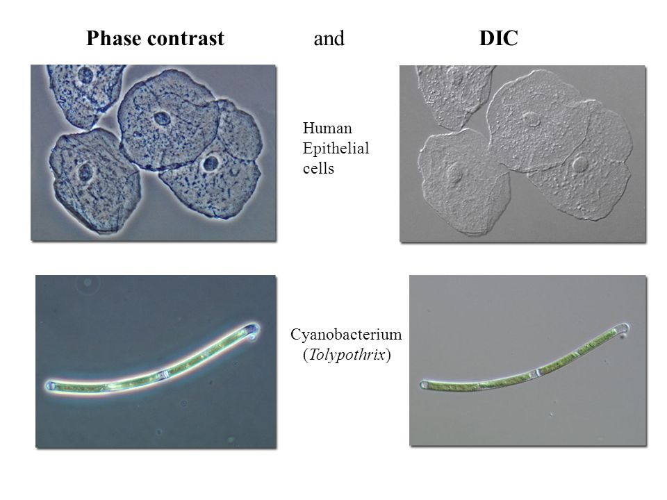 Phase contrast and DIC Human Epithelial cells Cyanobacterium (Tolypothrix)
