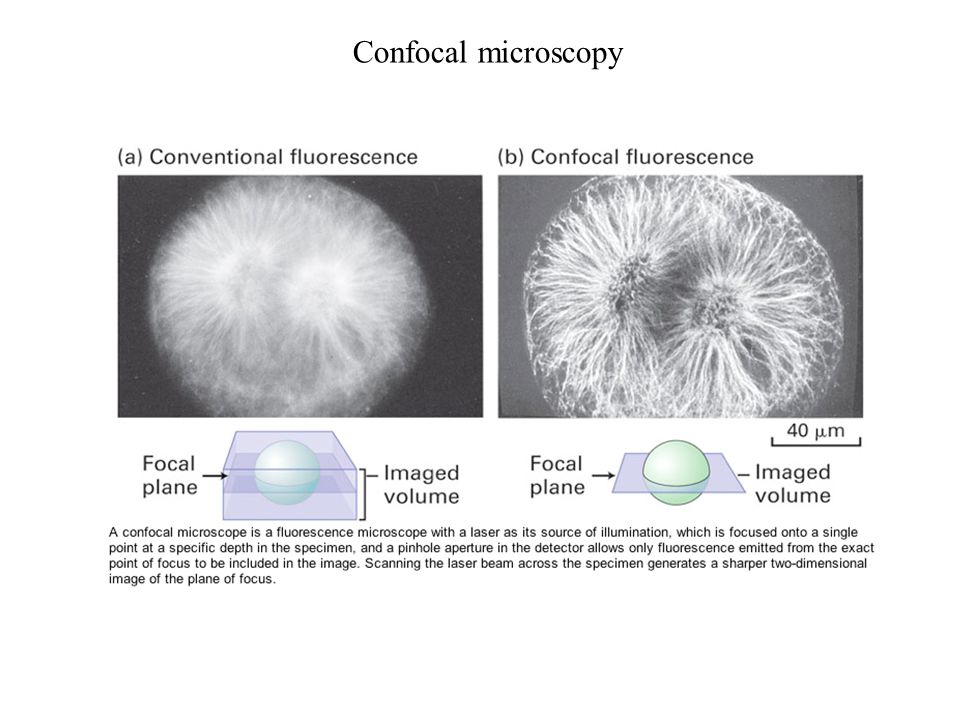 Confocal microscopy