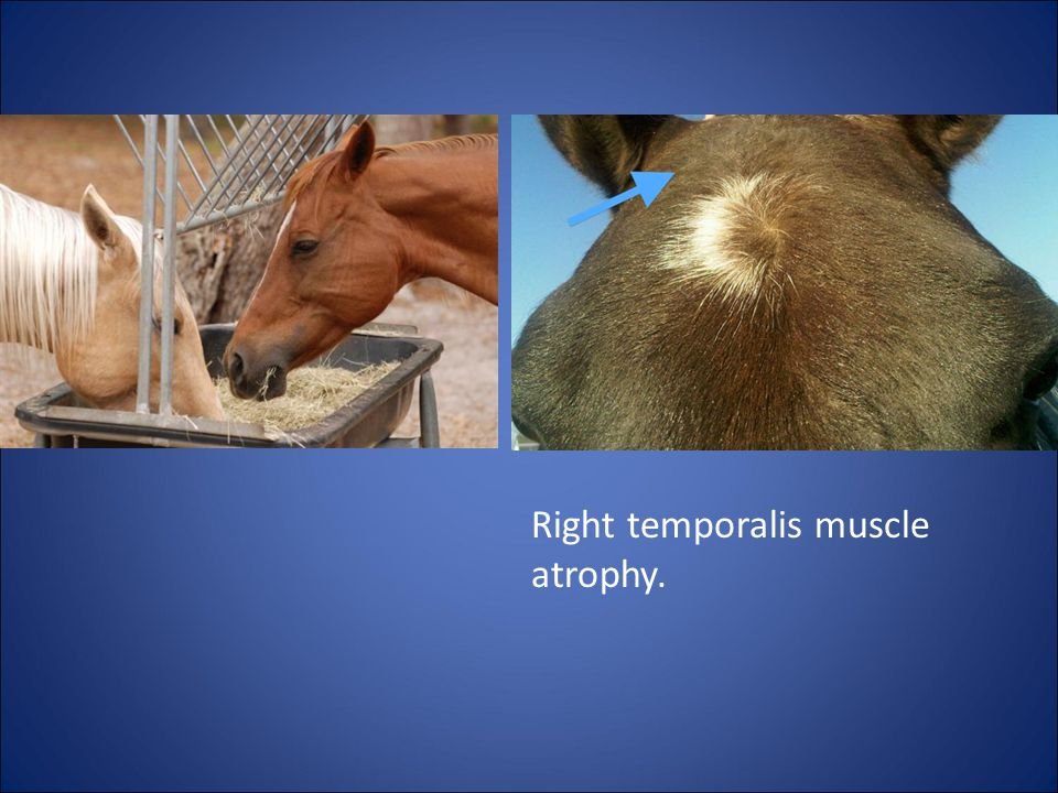 Right temporalis muscle atrophy.