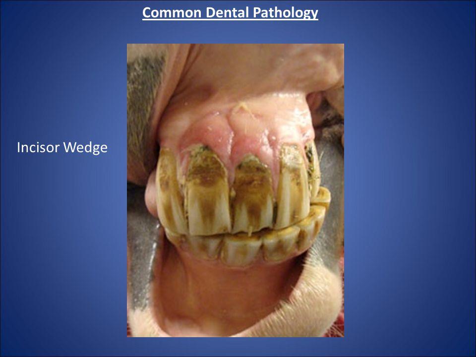 Common Dental Pathology Incisor Wedge