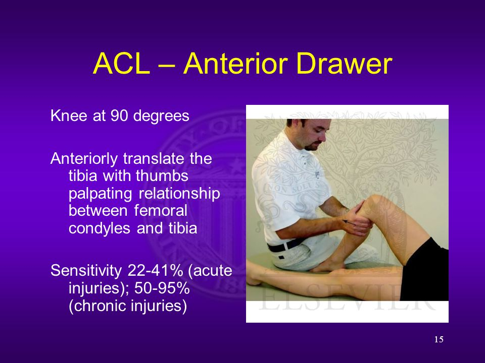 ACL – Anterior Drawer 15 Knee at 90 degrees Anteriorly translate the tibia with thumbs palpating relationship between femoral condyles and tibia Sensitivity 22-41% (acute injuries); 50-95% (chronic injuries)