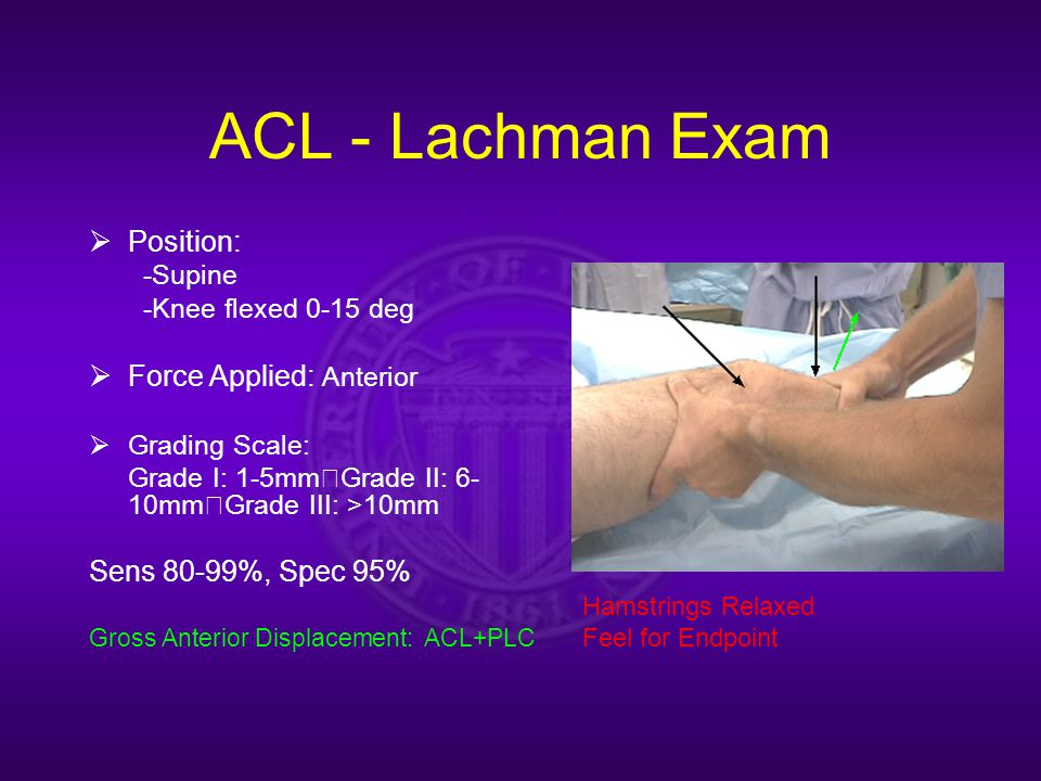 ACL - Lachman Exam  Position: -Supine -Knee flexed 0-15 deg  Force Applied: Anterior  Grading Scale: Grade I: 1-5mm Grade II: 6- 10mm Grade III: >10mm Sens 80-99%, Spec 95% Gross Anterior Displacement: ACL+PLC Hamstrings Relaxed Feel for Endpoint