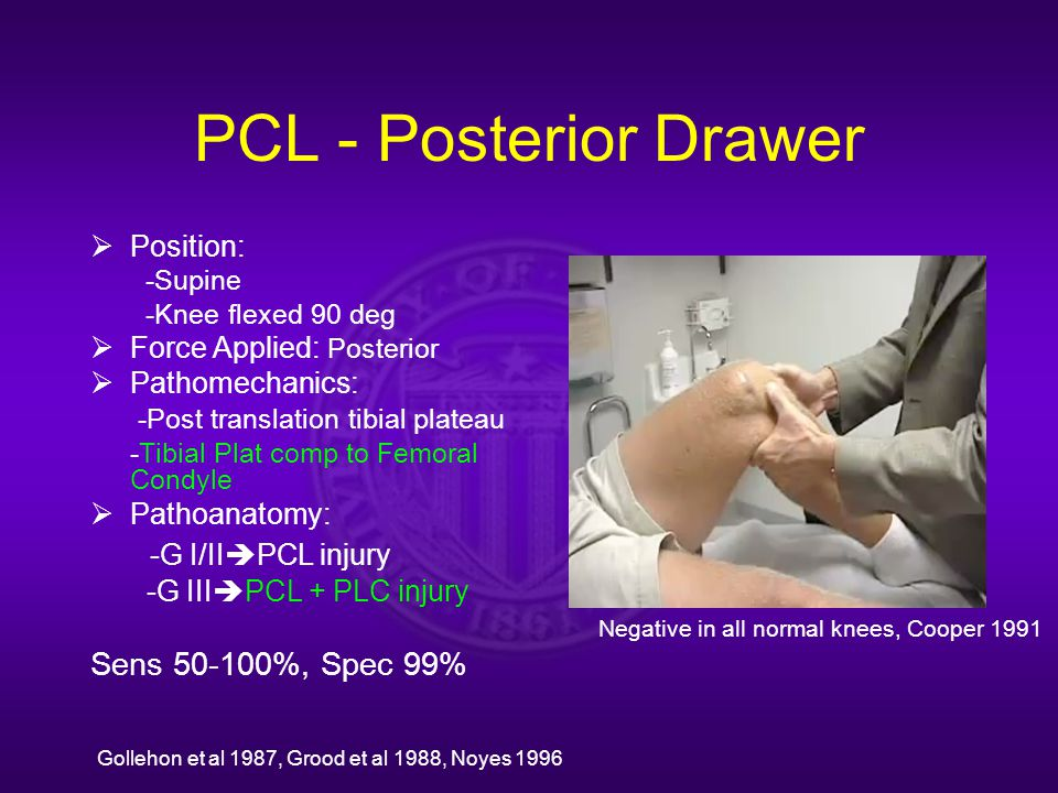 PCL - Posterior Drawer  Position: -Supine -Knee flexed 90 deg  Force Applied: Posterior  Pathomechanics: -Post translation tibial plateau -Tibial Plat comp to Femoral Condyle  Pathoanatomy: -G I/II  PCL injury -G III  PCL + PLC injury Sens 50-100%, Spec 99% Negative in all normal knees, Cooper 1991 Gollehon et al 1987, Grood et al 1988, Noyes 1996