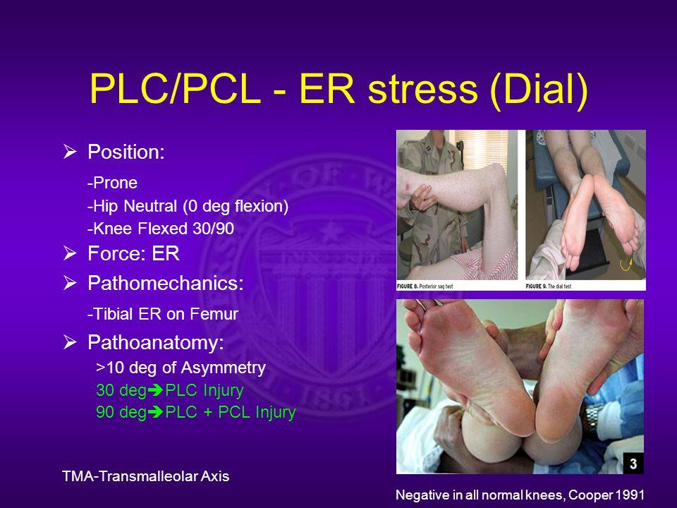 PLC/PCL - ER stress (Dial)  Position: -Prone -Hip Neutral (0 deg flexion) -Knee Flexed 30/90  Force: ER  Pathomechanics: -Tibial ER on Femur  Pathoanatomy: >10 deg of Asymmetry 30 deg  PLC Injury 90 deg  PLC + PCL Injury TMA-Transmalleolar Axis Negative in all normal knees, Cooper 1991