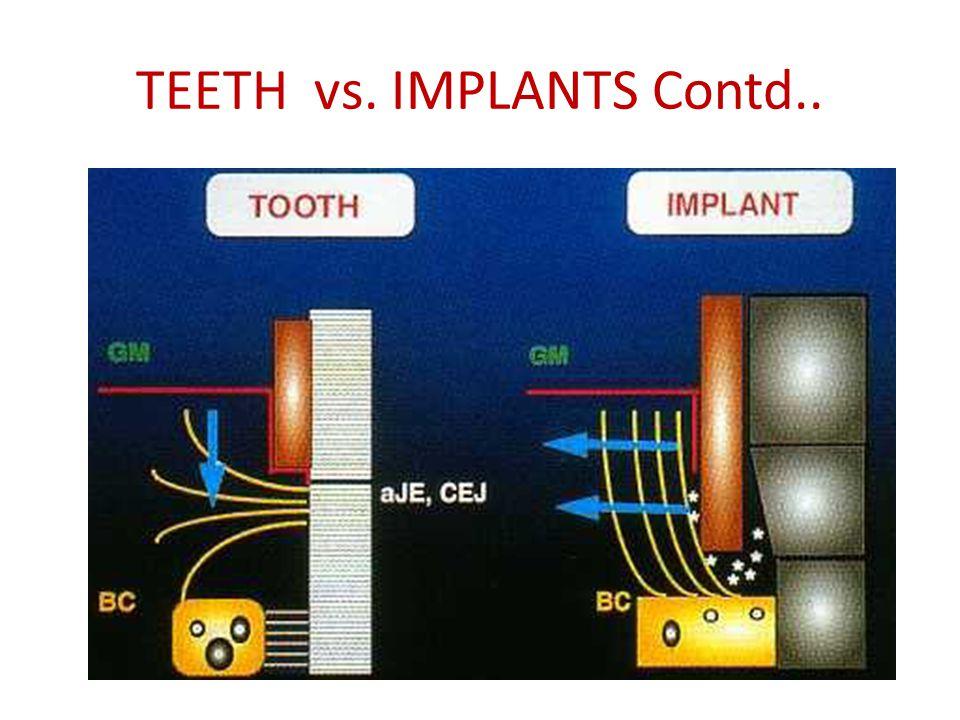 TEETH vs. IMPLANTS Contd..